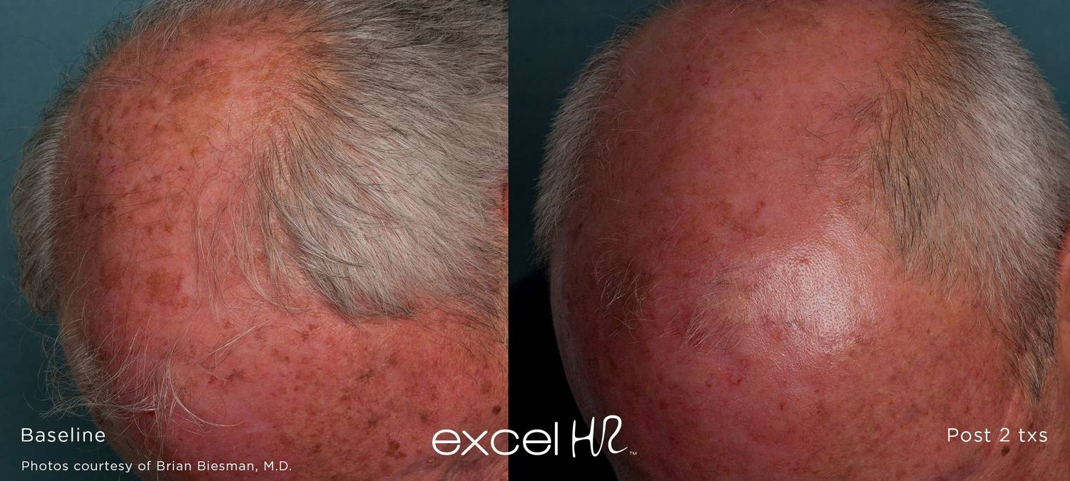 excel HR™ hair removal Stone Dermatology