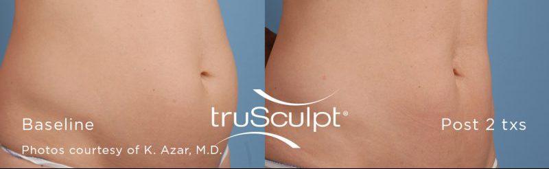 truSculpt Stone Dermatology