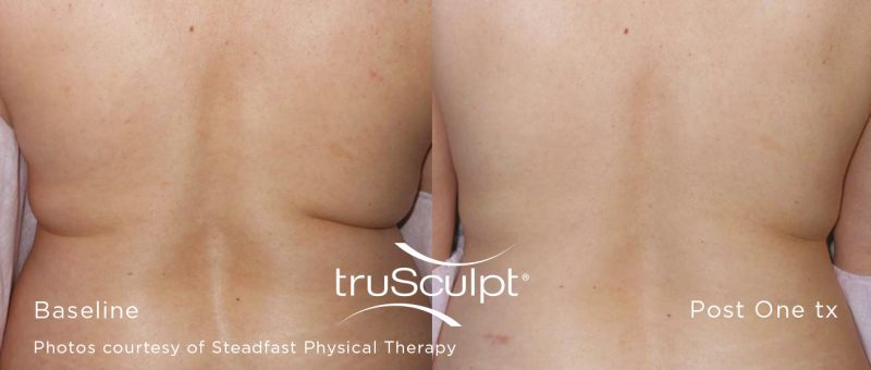 truSculpt™ laser body sculpting Stone Dermatology