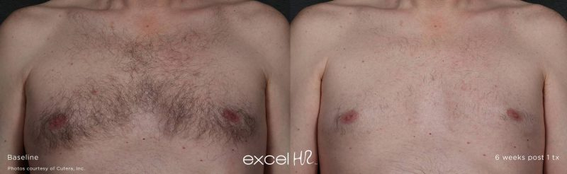 excel HR™ laser hair removal Stone Dermatology