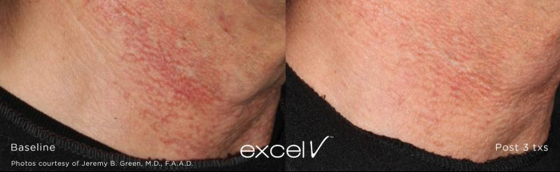 excel V™ laser treatments Stone Dermatology